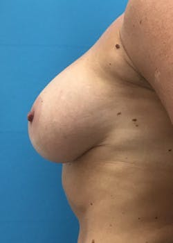 Breast Augmentation Gallery - Patient 46614455 - Image 3