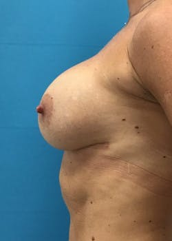 Breast Augmentation Gallery - Patient 46614455 - Image 4