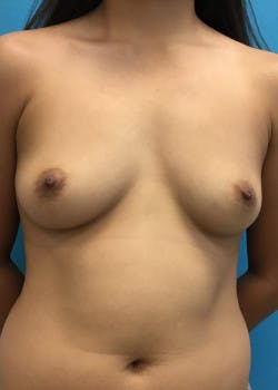 Breast Augmentation Gallery - Patient 46614524 - Image 1