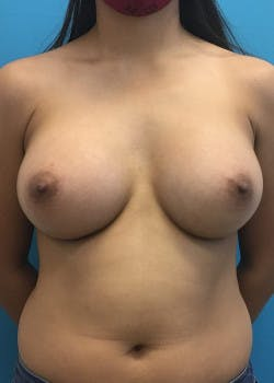 Breast Augmentation Gallery - Patient 46614524 - Image 2