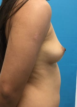 Breast Augmentation Gallery - Patient 46614524 - Image 3