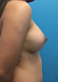 Breast Augmentation Gallery - Patient 46614524 - Image 4