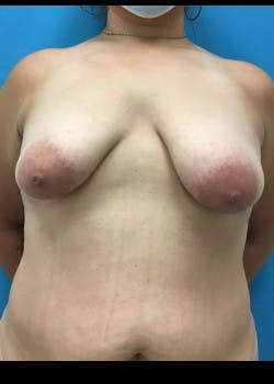 Breast Augmentation Gallery - Patient 46614561 - Image 1