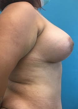 Breast Augmentation Gallery - Patient 46614561 - Image 4