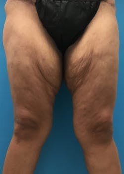 Thigh Lift Gallery - Patient 46616342 - Image 1