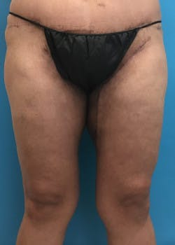 Thigh Lift Gallery - Patient 46616342 - Image 2