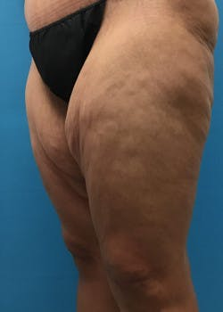 Thigh Lift Gallery - Patient 46616342 - Image 3