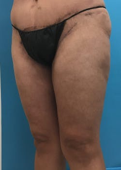 Thigh Lift Gallery - Patient 46616342 - Image 4