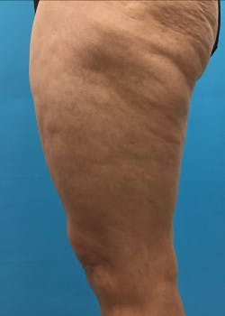 Thigh Lift Gallery - Patient 46616342 - Image 5