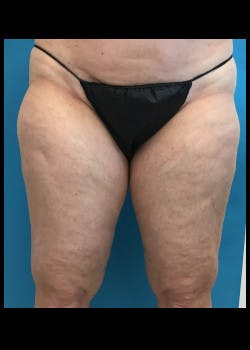 Thigh Lift Gallery - Patient 46616385 - Image 1
