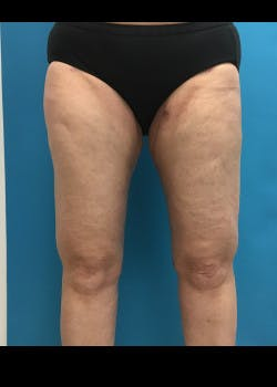 Thigh Lift Gallery - Patient 46616385 - Image 2