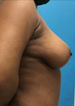 Breast Reduction Gallery - Patient 46617276 - Image 4