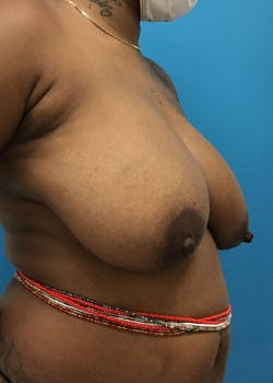 Breast Reduction Gallery - Patient 46617276 - Image 5