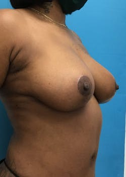 Breast Reduction Gallery - Patient 46617276 - Image 6