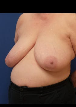 Breast Reduction Gallery - Patient 46617310 - Image 1