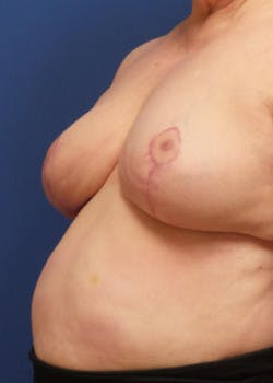 Breast Reduction Gallery - Patient 46617310 - Image 2