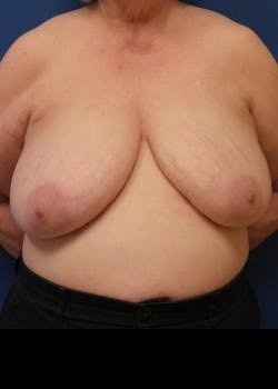 Breast Reduction Gallery - Patient 46617310 - Image 3