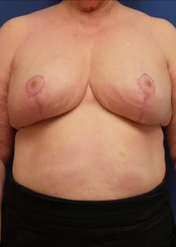 Breast Reduction Gallery - Patient 46617310 - Image 4