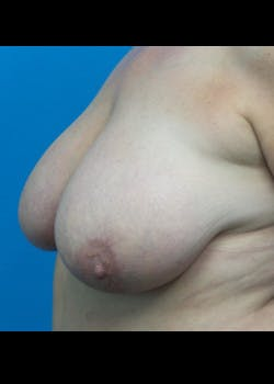 Breast Reduction Gallery - Patient 46617334 - Image 1