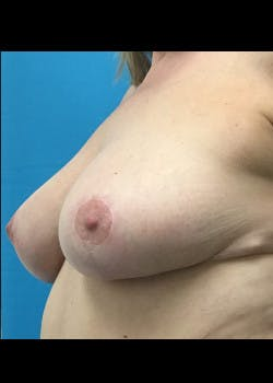Breast Reduction Gallery - Patient 46617334 - Image 2