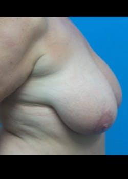 Breast Reduction Gallery - Patient 46617334 - Image 3