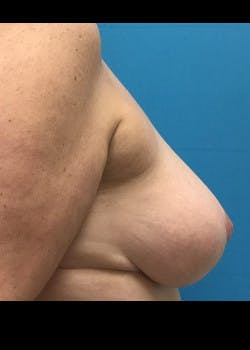 Breast Reduction Gallery - Patient 46617334 - Image 4