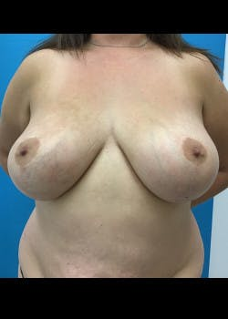 Breast Reduction Gallery - Patient 46617371 - Image 1