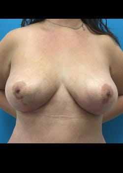 Breast Reduction Gallery - Patient 46617371 - Image 2