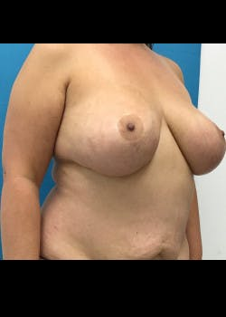 Breast Reduction Gallery - Patient 46617371 - Image 3