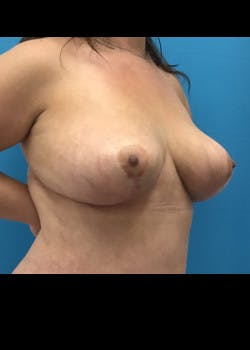 Breast Reduction Gallery - Patient 46617371 - Image 4