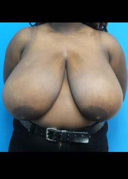 Breast Reduction Gallery - Patient 46617399 - Image 1