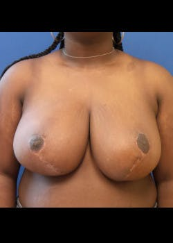 Breast Reduction Gallery - Patient 46617399 - Image 2