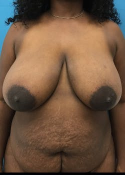 Breast Reduction Gallery - Patient 46617433 - Image 1