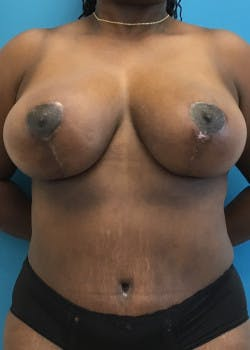 Breast Reduction Gallery - Patient 46617433 - Image 2