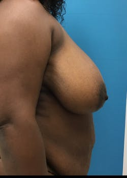 Breast Reduction Gallery - Patient 46617433 - Image 3