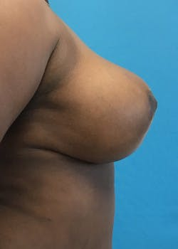 Breast Reduction Gallery - Patient 46617433 - Image 4