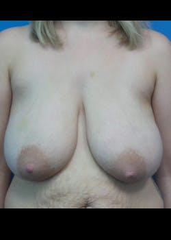 Breast Reduction Gallery - Patient 46617446 - Image 1