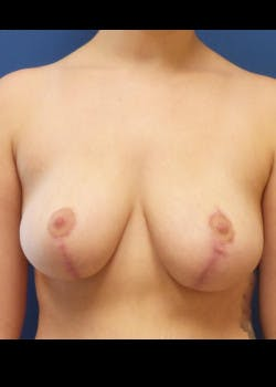 Breast Reduction Gallery - Patient 46617446 - Image 2