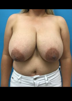 Breast Reduction Gallery - Patient 46617489 - Image 1