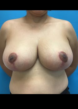 Breast Reduction Gallery - Patient 46617489 - Image 2