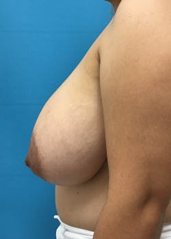 Breast Reduction Gallery - Patient 46617489 - Image 3