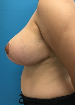 Breast Reduction Gallery - Patient 46617489 - Image 4