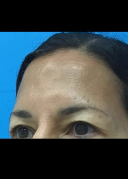 Browlift Gallery - Patient 46618459 - Image 1