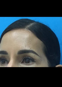 Browlift Gallery - Patient 46618459 - Image 2