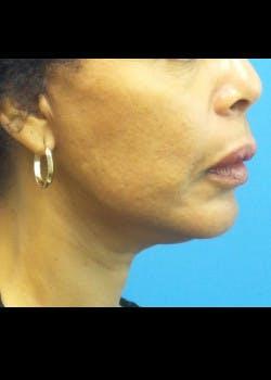 Facelift Gallery - Patient 46618548 - Image 2