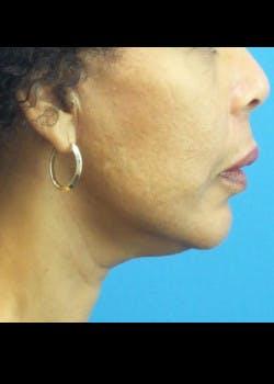 Facelift Gallery - Patient 46618548 - Image 4