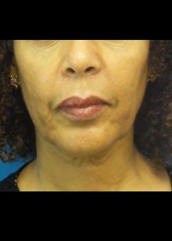Facelift Gallery - Patient 46618548 - Image 5