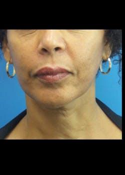 Facelift Gallery - Patient 46618548 - Image 6