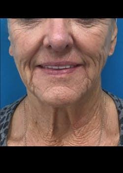 Facelift Gallery - Patient 46618582 - Image 3