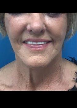Facelift Gallery - Patient 46618582 - Image 4